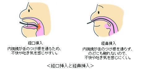 細径内視鏡イメージ図