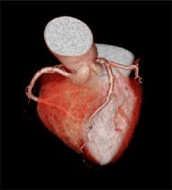 心臓3D画像