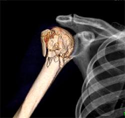 肩関節3D画像(骨折)