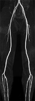 下肢の血管(動脈)