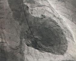 心臓(左心室)の動きを表す画像です